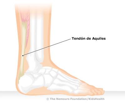 tendinitis-aquiles