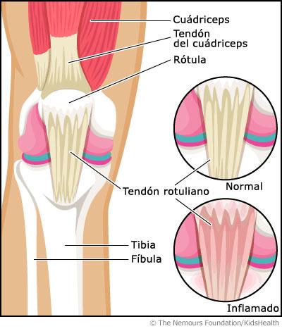 tendinitis-rotuliana