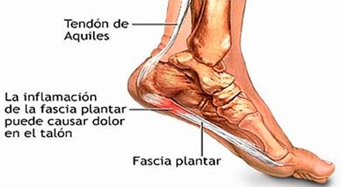 dolor en el tendón externo del muslo