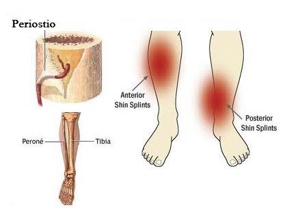 dolor en la pantorrilla inferior derecha después de correr